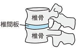 椎骨と椎間板のイラスト