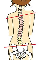 歪んだ背骨のイラスト